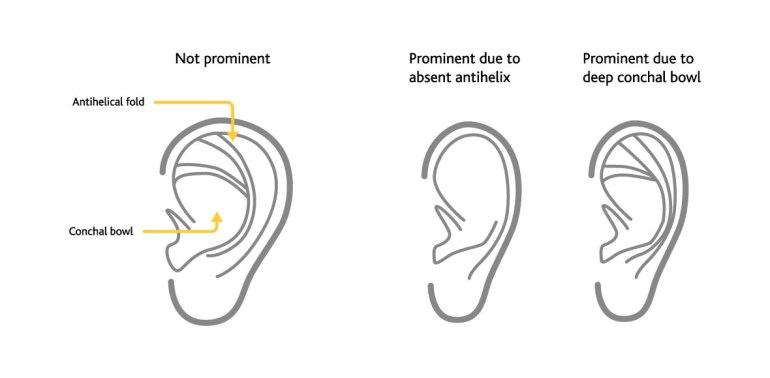 earfoldøre